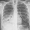 Respiratory Medicine SCE Revision